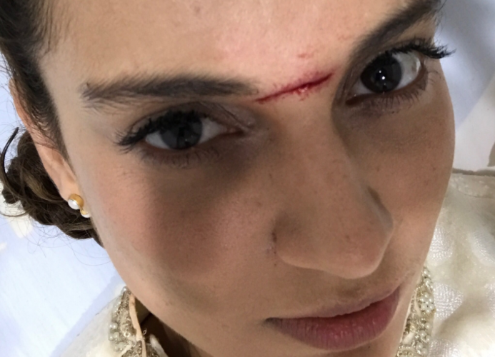 Kangana Ranaut hospitalized after getting injured on the sets of Manikarnika The Queen of Jhansi
