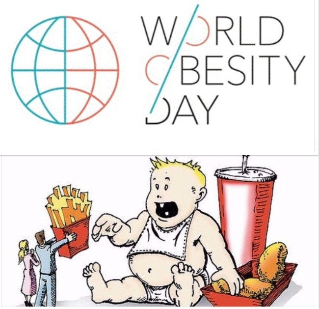 World Obesity day 2017: Know about causes, Health risk and Preventions.